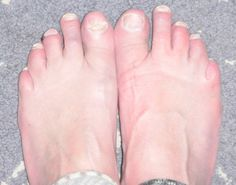 Foot Fungus Blisters On Toe You can get more information about nail care at Purifythis.com