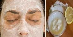 """Para mulheres: livre-se do """"bigode"""" e de pelos no rosto para sempre com esta receita natural   Cura pela Natureza"""