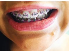 Power Chain Braces, Lingual Braces, Braces Girls, Braces Colors, Teeth Braces, Headgear, Brace Face, Beautiful, Makeup