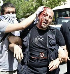 Crowdfunding Turkish Aid For The People Injured In Gezi Park Protest Rally Joker, Park, Revolutions, Istanbul Turkey, News, Rally, Police, Twitter, Pretty