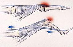 Boswellia pas cher - Arthrite - Ligue suisse contre le rhumatisme