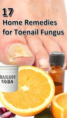 17 Home #Remedies for #Toenail Fungus : #ToenailFungus  #HomeRemedies #ToenailFungusHomeRemedies #Herbs #cure #healthcare #Remedies #HomeRemedies #NaturalRemedies #HealthRemedies #health #wellness #healthy #HomeRemedy #Homeremedy - > http://www.homeremedyshop.com/17-home-remedies-for-toenail-fungus/