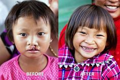 The cleft lip Fu Yun was born with made eating and speaking difficult. Other children laughed at her and made her cry. Her new smile means that she can now go to school and have a normal, happy childhood.    Find out how you can help children like Fu Yun: wecanchangeforever.com