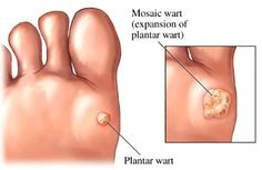 How to Naturally Remove Warts in 2 Weeks With 100% Proven Success Rate