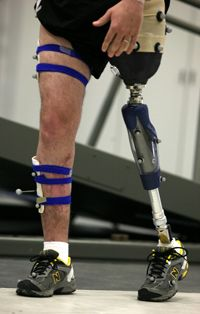 Physical Therapy is sometimes used to reteach people how to wTValk after receiving a prosthetic.  http://static.ddmcdn.com/gif/prosthetic-limb-4.jpg