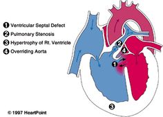 Addison has this Congenital Heart Defect: Tetralogy of Fallot