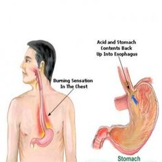 Effective Natural Remedies For Heartburn