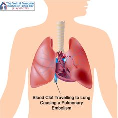 As National DVT awareness month comes to an end, we remind everybody that blood clots are very dangerous because blood clots that form inside your leg veins (DVT) can travel to the lungs, causing a pulmonary embolism...that can be fatal.  #TampaVeinClinic #TampaVeinScreening #TampaDeepVeinThrombosisSpecialist  https://www.tampavascularsurgeon.com/