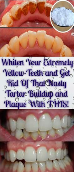 Whiten Your Extremely Yellow-Teeth and Get Rid Of That Nasty Tartar Buildup and Plaque With THIS!