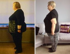 Gastric Sleeve testimonials Before and After Images We have just been sent a set of before and after Images from Wilma MacD. who came to our Hospital in Le Havre, Northern France, in September of 2...