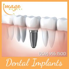 Reasons Why You Shouldnt Be Concerned About Your Dental Implant Procedure