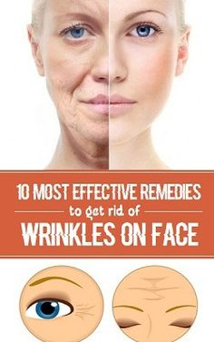 10 Most Effective Remedies to Get Rid of Wrinkles