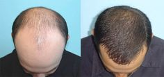 #Hair #transplantation became popular today as baldness is common problem in celebrities too