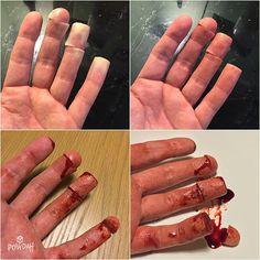 Making of the finger food effect #specialfx #specialeffects #specialeffectsmakeup #sfx #sfxmakeup #fxmakeup #fx #makeup #mua