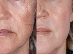 Main Issue(s): Aging, Wrinkles, Minor Pigmentation Treatment: ZO Skin Health & ZO Medical (min. of 6 weeks) Result: Firm, Tight, and Smoother Skin. You will see major improvements by Christmas!