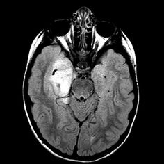 CT scan of a 4 year old male who presented with with seizures, non-enhancing temporal lobe lesion