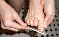 Két természetes gyógymód a körömgomba ellen - MindenegybenBlog