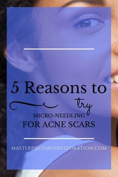 acne scars, micro-needling, scar reduction, depressed acne scars, studies, combining treatments, chemical peels, what to expect, skin rejuvenation, skincare #AcneScarsTreatment