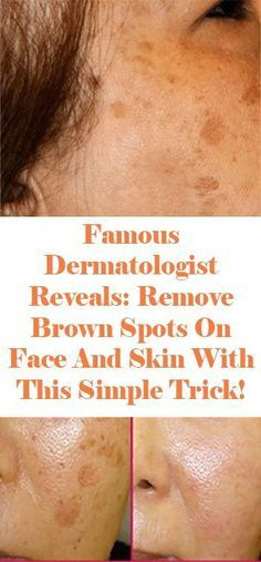 Famous Dermatologist Revealed: Remove Brown Spots On Face And Skin With This Simple Trick!To prepare it, you want the most effective ingredients, .Dermatologist Revealed: Remove Brown Spots On Face And Skin With This Simple Trick! Brown Spots On Skin, Skin Spots, Dark Spots, Facial Brown Spots, Age Spots On Face, Brown Skin, Beauty Care, Beauty Skin, Health And Beauty