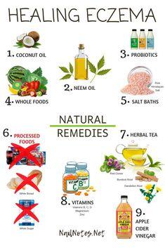 Eczema Eczema Treatment Eczema Remedies Remedies For Natural Asthma Remedies, Ayurvedic Remedies, Psoriasis Remedies, Health Remedies, Natural Cures For Eczema, Natural Health, Home Remedies For Eczema, Eczema Psoriasis, Tips