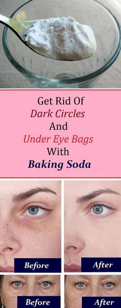 How to get rid of Dark Circles and Under Eye Bags with Baking Soda Beauty Care, Beauty Skin, Diy Beauty, Beauty Ideas, Beauty Makeup, Homemade Beauty, Beauty Stuff, Baking Soda Mask, Baking Soda On Face