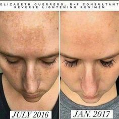 A picture's worth a thousand words.... RF REAL RESULTS! Why not have the best skin & lashes of your life?? #RFrealresults #lifechangingskincare