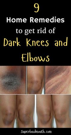 Rough, darkened knees and elbow are a common problem. They become dark because of dead skin cells. Elbow skin is naturally thicker and m. How To Lighten Knees, Lighten Skin, Lighten Armpits, Whiten Skin, Dark Skin Around Neck, Dark Spots On Skin, Clear Skin Face, Face Skin, Beauty Tips For Glowing Skin