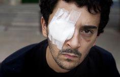 Una víctima de pelotas de goma acusa a un escopetero de Mossos