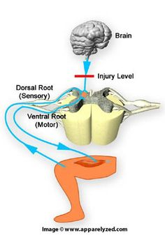Muscle spasms can occur in a person with a spinal cord injury any time the body is stimulated below the level of injury. Leg Spasms, Muscle Spasms, Spinal Cord Injury Treatment, Autonomic Dysreflexia, Cauda Equina Syndrome, Spinal Cord Stimulator, Motor Neuron, Back Surgery, Peripheral Nerve