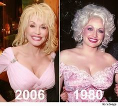 Dolly Parton Breast Implants Before After – www.celeb-surgery… Dolly Parton Brustimplantate Vorher Nachher – www. Bad Celebrity Plastic Surgery, Celebrity Surgery, Dolly Parton Plastic Surgery, Dolly Parton Young, Most Beautiful Women, Beautiful People, Dolly Parton Pictures, Dolly Parton Quotes, Celebrities Then And Now
