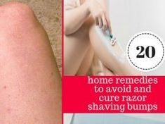 20 Quick and Easy Home Remedies to Get Rid of Razor Bumps and Burns Fast Nose Piercing Care, Piercings, Keloid Piercing, Rashes Remedies, Home Remedies, Hair Follicles, Razor Burn Remedies, Shaving Bumps, Health