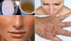 Esto blanquea y limpia al instante la piel en la cara y las manos de las manchas!! | Salud con Remedios