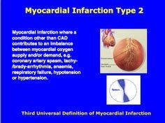 Third universal definition of Myocardial Infarction : Type 2 Cardiovascular Nursing, Myocardial Infarction, Cardiac Nursing, Diagram Chart, Acute Care, Emergency Medicine, Circulatory System, Nurse Stuff, Cardiology