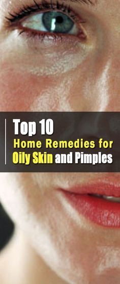 Top 10 Home Remedies for Oily Skin and Pimples Skin Care. Top 10 Hausmittel gegen fettige Haut und P Oily Skin Remedy, Oily Skin Care, Skin Care Tips, Dry Skin, Smooth Skin, Facial For Oily Skin, Tips For Oily Skin, Skin Tips, Natural Skin Moisturizer