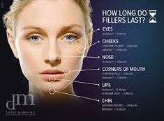 facial fillers - Google Search Lip Injections Juvederm, Botox Lips, Cheek Fillers, Dermal Fillers, Chin Filler, Botox Cosmetic, Lip Augmentation, Laser Clinics, Look Plus
