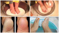 L'état de vos pieds peut dire beaucoup de choses sur vous. Alors que la plupart des gens ne donnent aucune importance pour la santé et la beauté de leurs pieds. Les fissures, sécheresses et autres problèmes de pieds peuvent affecter négativement votre qualité de vie. Soyez conscient que des pieds mal soignés indique …