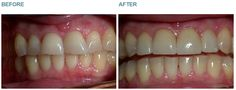 Dental Veneers - Case 1 This lady had heavily worn teeth from grinding. BEFORE: Note the assymetry of the edges of the teeth. Note the chipping on the tips of the teeth, this is caused by grinding. AFTER: This lady had porcelain veneers bonded to her four front teeth and to help create a harmonious smile the tips of the adjacent canine teeth had tooth coloured filling material bonded to them.