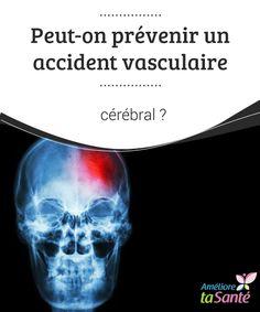 Peut-on #prévenir un accident vasculaire cérébral ?   Comme il existe de nombreux #facteurs que nous ne pouvons contrôler dans #l'accident vasculaire #cérébral, il est fondamental d'avoir une vie saine.