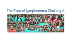 "In September of 2014, at the 5th Annual Walk for Lymphedema & Lymphatic Diseases, Academy-Award winning actress Kathy Bates stepped forward to kick off the Face of Lymphedema Challenge. In this new effort, we are asking all those who have lymphedema, and those who love them, to step forward and announce on video, ""I have lymphedema"" or ""Someone I love has lymphedema."""
