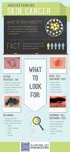 There isn't just one type of skin cancer. Do you know what to look for?: