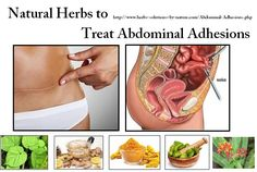 Wonderful Natural Herbs to Treat Abdominal Adhesions Pain