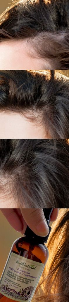 This alopecia treatment has transformed my hair completely. I used to have very thin brittle hair that would fall off just by rubbing my scalp. I was scared to wash it because I ended up with tons of hair in my hands. I can't believe how beautiful it look New Hair, Your Hair, Wavy Hair, Brittle Hair, Hair Loss Treatment, Hair Treatments, Tips Belleza, Hair Health, Looks Cool