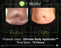 WOW! This is the best one I've seen! Just look at her stomach! The wraps continue to work for 72 hours and 12 is a treatment... Just imagine how she would look after a few more!  #itworks #results