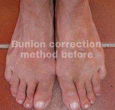 My feet before my experiment 1 slightly squeezed together Mis pies antes de mi experimenting 1 juntos y apretados ligeramente