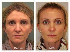 Aging, wrinkles, and fine lines westport dermatology sculptra ...