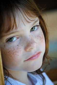 Red hair and freckles, this is exactly how my freckles started.
