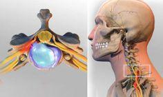 Cette douleur qui part du cou jusqu'au bras : La cervicobrachialgie
