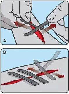 Closing a wound with duct tape