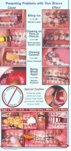 brushing with braces | Flossing & brushing with braces:
