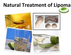 Natural Treatment of Lipoma with Home Remedies